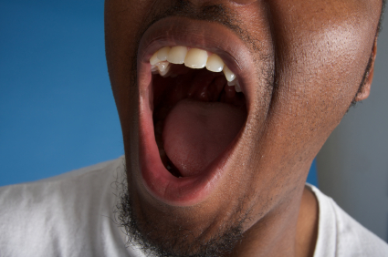 Everything You Need to Know About Dry Mouth